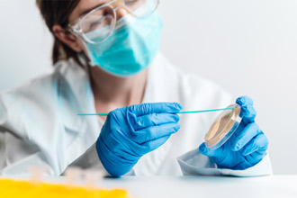 Probe microbiologice