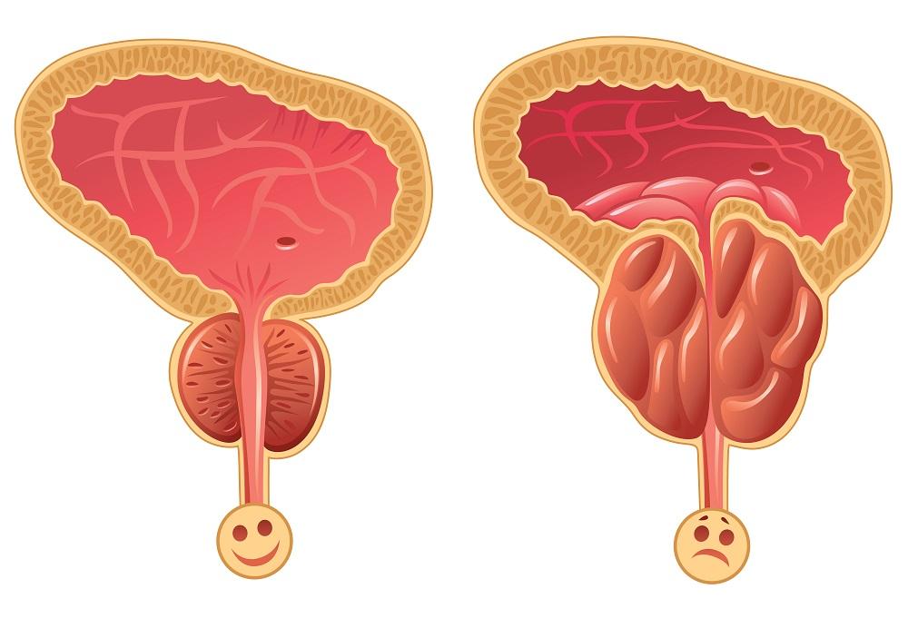adenom de prostata tratament medicamentos)