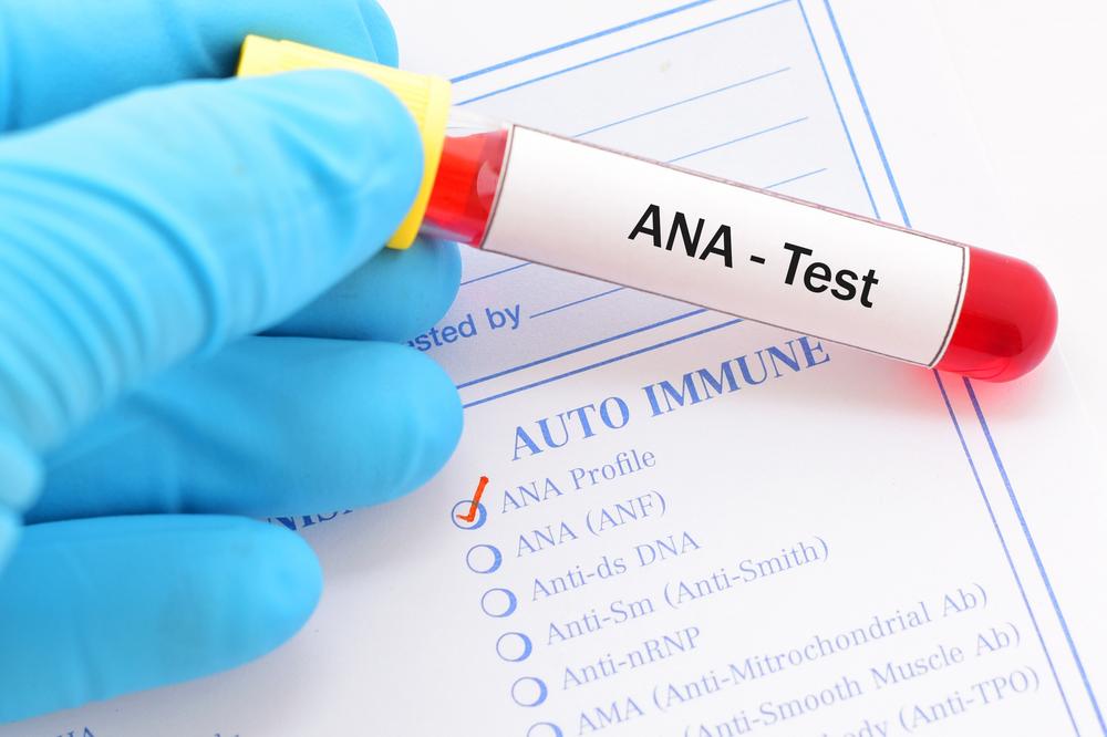 Lupus analize